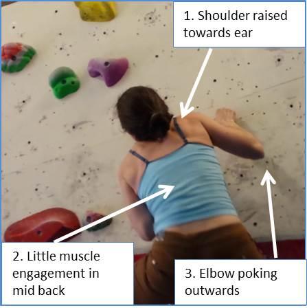 Indicators of Poor Shoulder Movement. Shoulder Pain Massage from Maple Clinic Dublin